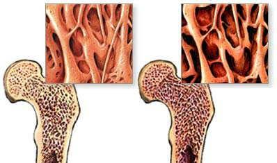 La enfermedad ósea se presenta después de un trasplante de riñón